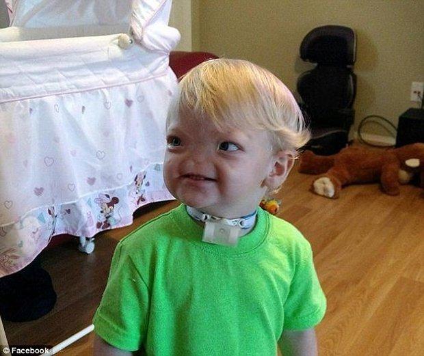 Em bé sinh ra không có mũi, cuối cùng, bé đã qua đời sau 2 năm chiến đấu với bệnh tật - Ảnh 2.