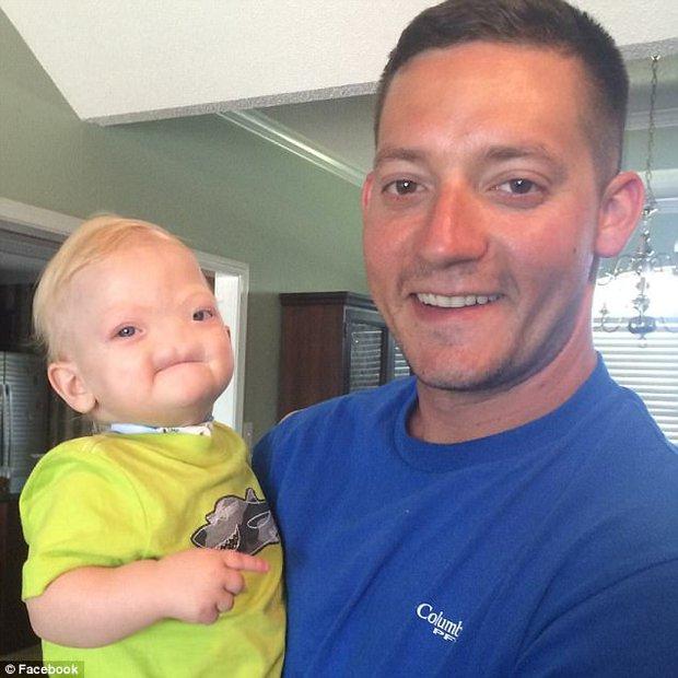 Em bé sinh ra không có mũi, cuối cùng, bé đã qua đời sau 2 năm chiến đấu với bệnh tật - Ảnh 1.