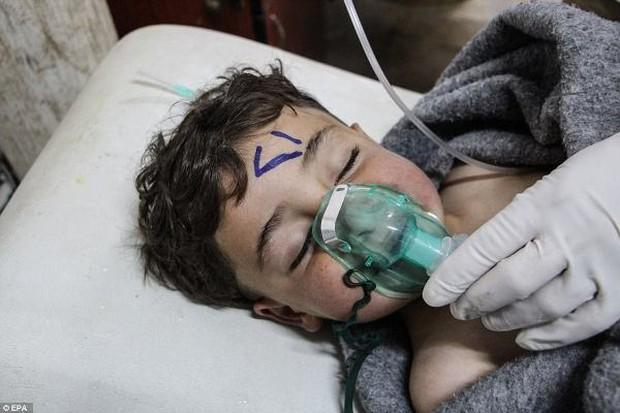 Hình ảnh đau lòng về những đứa trẻ là nạn nhân trong cuộc chiến hóa học tại Syria - Ảnh 6.