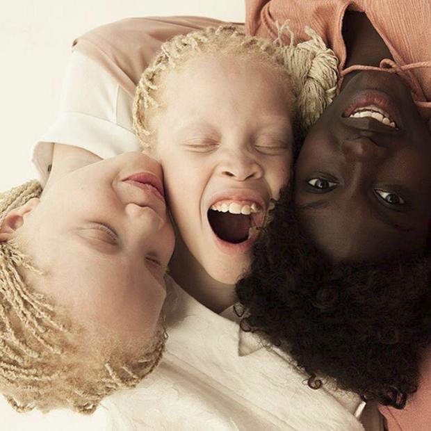 Vẻ đẹp lạ của cặp chị em song sinh bị bạch tạng gây xôn xao ngành công nghiệp thời trang Brazil - Ảnh 5.