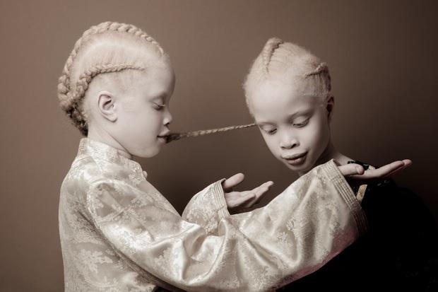 Vẻ đẹp lạ của cặp chị em song sinh bị bạch tạng gây xôn xao ngành công nghiệp thời trang Brazil - Ảnh 2.