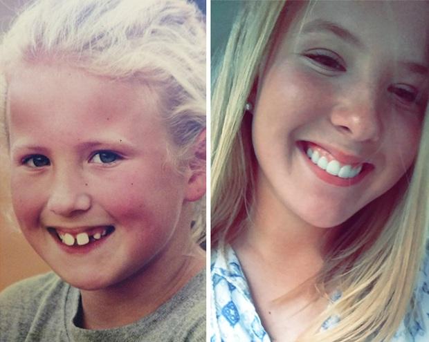 19 khuôn mặt thay đổi ngoạn mục chứng tỏ sức mạnh của niềng răng thật là vi diệu - Ảnh 31.