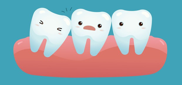 Đây là những cách để giảm sự hoành hành của chiếc răng ngu - Ảnh 4.