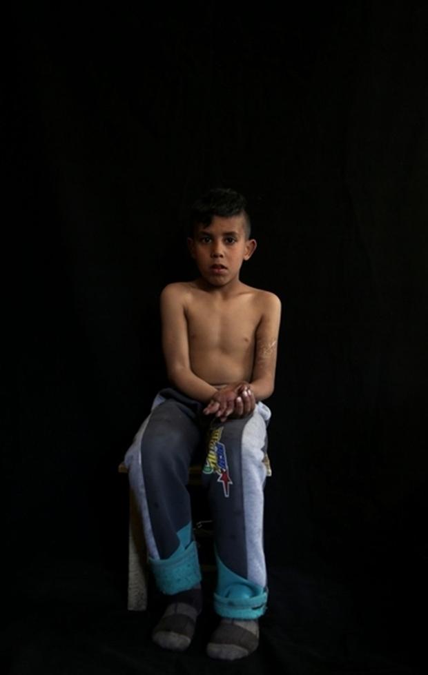 Tình hình Syria: Hình ảnh nạn nhân trong các cuộc tấn công kinh hoàng ở Syria- Ảnh 14.