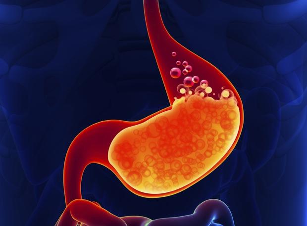 5 dấu hiệu sớm cảnh báo ung thư dạ dày mà bất cứ ai cũng không nên chủ quan - Ảnh 2.