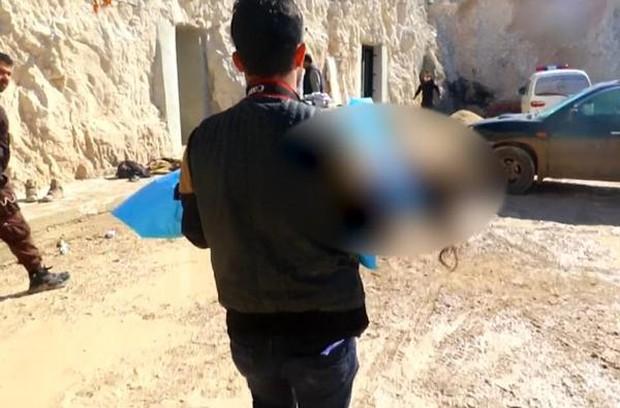 Hình ảnh đau lòng về những đứa trẻ là nạn nhân trong cuộc chiến hóa học tại Syria - Ảnh 9.