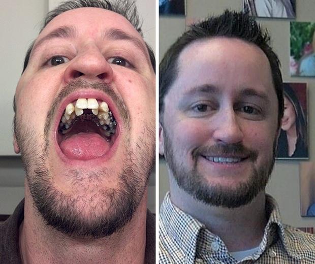 19 khuôn mặt thay đổi ngoạn mục chứng tỏ sức mạnh của niềng răng thật là vi diệu - Ảnh 35.