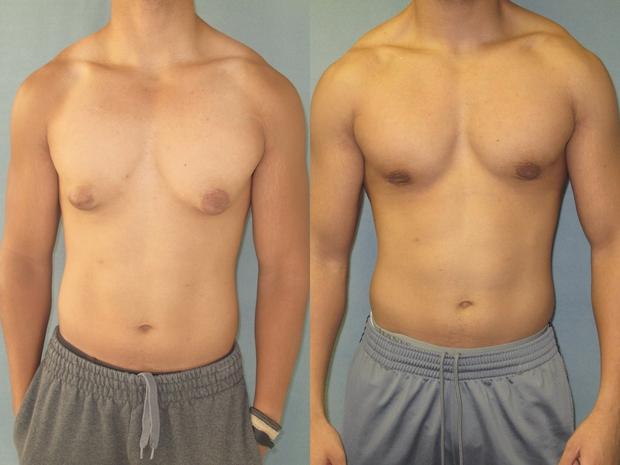 Cơ thể thiếu loại hormone này, ngực nam giới có thể phát triển to giống nữ giới - Ảnh 1.