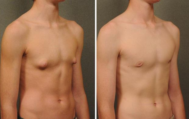 Cơ thể thiếu loại hormone này, ngực nam giới có thể phát triển to giống nữ giới - Ảnh 3.