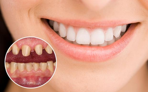 Bọc răng sứ: Để có hàm răng đẹp hoàn hảo, chúng ta phải bỏ ra bao nhiêu tiền? - Ảnh 7.