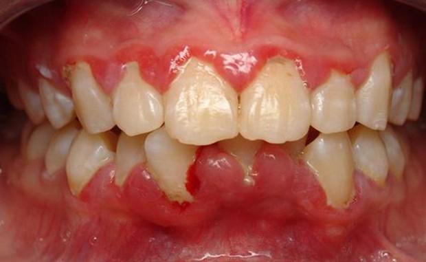 Muốn niềng răng ư - bạn hãy lên dây cót tinh thần để đối mặt với những điều này - Ảnh 4.