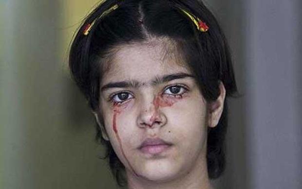 Chứng bệnh hiếm có kỳ lạ khiến cô gái này đổ MÁU thay mồ hôi - Ảnh 2.