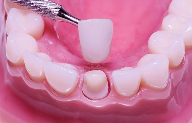 Bọc răng sứ: Để có hàm răng đẹp hoàn hảo, chúng ta phải bỏ ra bao nhiêu tiền? - Ảnh 1.