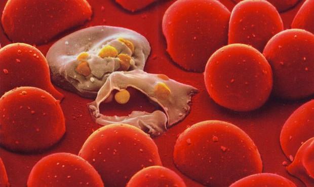 Vì sao chỉ từ 1 vết cắn mà có thể gây nhiễm trùng máu lấy đi mạng người? - Ảnh 4.