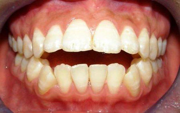 4 trường hợp bắt buộc phải đi niềng răng - Ảnh 3.