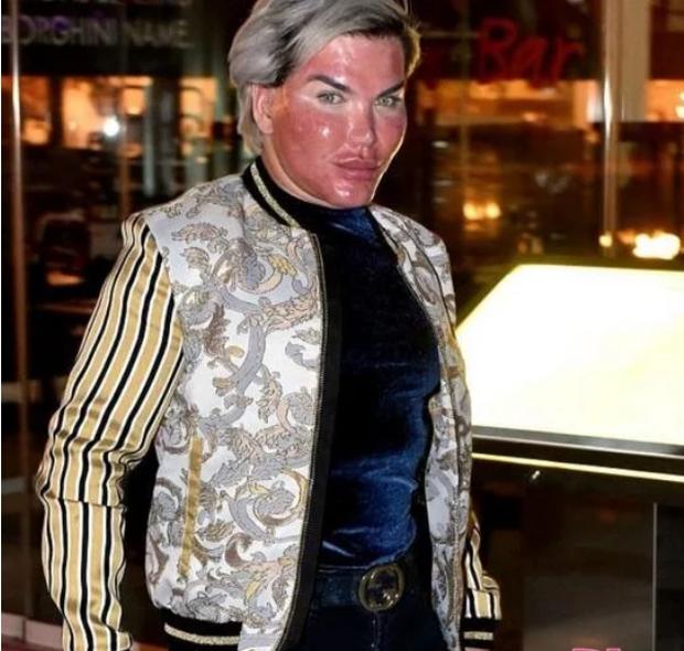 Tiêm filler căng da mặt quá tay, da mặt búp bê Ken phồng rộp như bị bỏng, mũi bị thủng một lỗ - Ảnh 3.