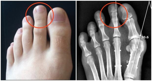 Ngón chân trỏ dài hơn ngón chân cái và cái kết chỉ 15% dân số thế giới phải chịu - Ảnh 2.
