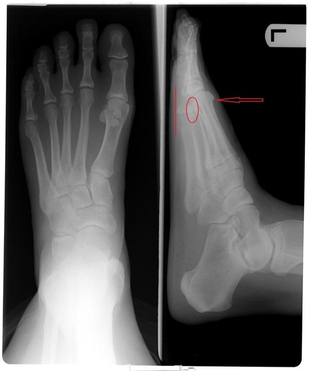 Ngón chân trỏ dài hơn ngón chân cái và cái kết chỉ 15% dân số thế giới phải chịu - Ảnh 3.
