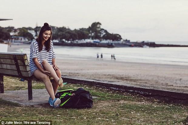 Mỗi tấm ảnh đăng lên, cô gái này lại truyền cảm hứng cho hàng ngàn người, lý do nằm ở đôi chân cô ấy - Ảnh 5.
