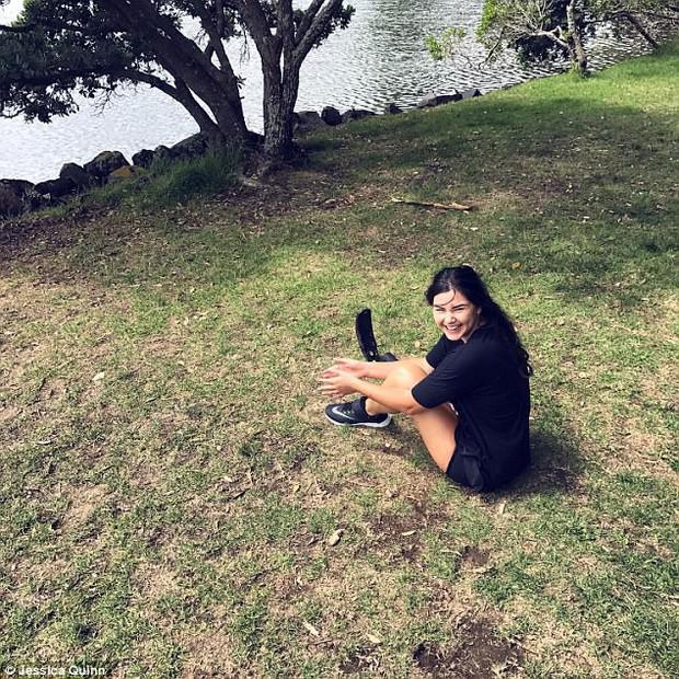 Mỗi tấm ảnh đăng lên, cô gái này lại truyền cảm hứng cho hàng ngàn người, lý do nằm ở đôi chân cô ấy - Ảnh 12.