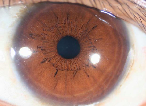 Đây là con mắt của một người, nhưng vì sao lại kỳ dị thế này? - Ảnh 2.