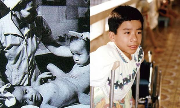 Người Việt đầu tiên bị dính liền cơ thể trở thành giáo sư thỉnh giảng tại Nhật Bản - Ảnh 3.