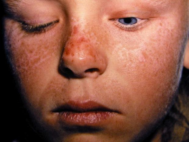 Khoa học công bố chứng bệnh lạ khiến con người có nỗi khổ giống ma cà rồng - Ảnh 2.