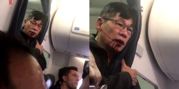 Những bê bối ẩn giấu phía sau vụ hãng hàng không lớn thứ 2 thế giới đối xử thô bạo với hành khách - Ảnh 5.