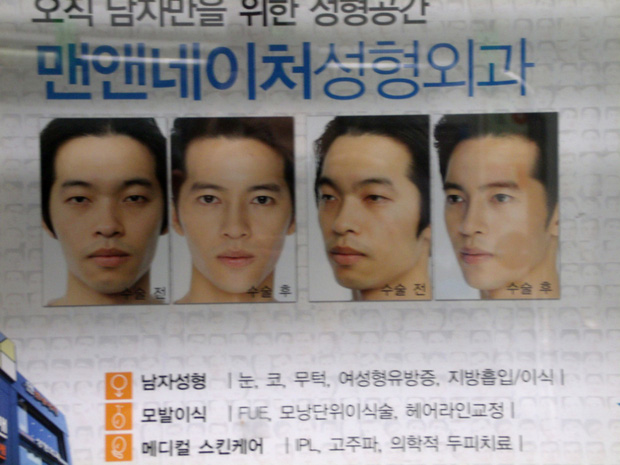 Nam giới Hàn Quốc đua nhau đi phẫu thuật thẩm mỹ để trở thành trai xinh như thần tượng - Ảnh 2.