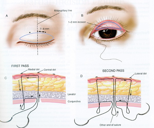 Săm soi quy trình phẫu thuật thẩm mỹ hô biến mắt một mí thành hai mí - Ảnh 2.