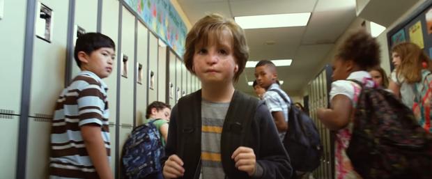 Cuộc đời được dựng thành phim của chàng trai sinh ra đã không có tai - Ảnh 6.