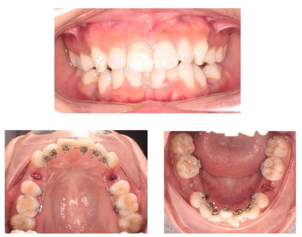 Chuyên gia cảnh báo: Đừng đợi quá muộn mới đi niềng răng - Ảnh 6.