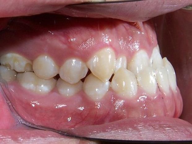 4 trường hợp bắt buộc phải đi niềng răng - Ảnh 6.