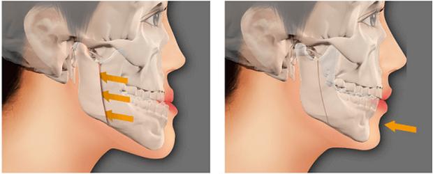 4 trường hợp bắt buộc phải đi niềng răng - Ảnh 4.