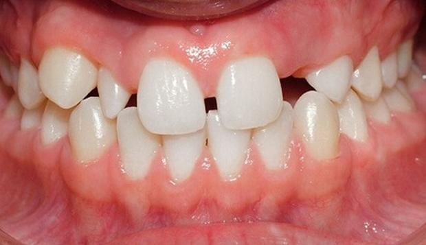 4 trường hợp bắt buộc phải đi niềng răng - Ảnh 9.