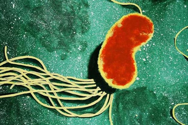 Quên cá mập đi, 5 vi khuẩn này còn khiến bạn sống dở chết dở hơn nhiều, cái số 2 còn ăn não - Ảnh 5.