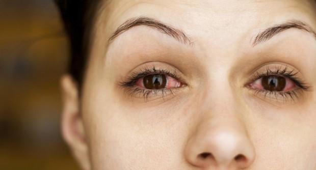 Đây chính là những lý do khiến mắt đỏ khi giao mùa và cách xử lý đúng đắn nhất - Ảnh 1.