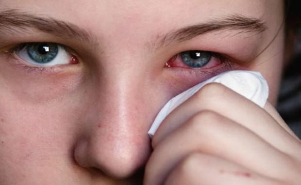 Đây chính là những lý do khiến mắt đỏ khi giao mùa và cách xử lý đúng đắn nhất - Ảnh 2.