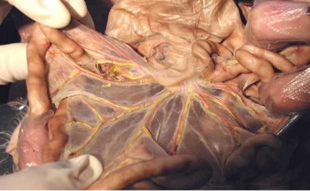 Chính thức tìm ra một bộ phận mới trên cơ thể con người - Ảnh 2.