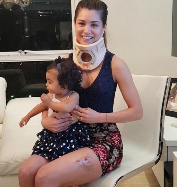 Hoa hậu Venezuela bị nữ ca sĩ đánh trầy mặt, chấn thương khắp người đến mức nhập viện - Ảnh 3.