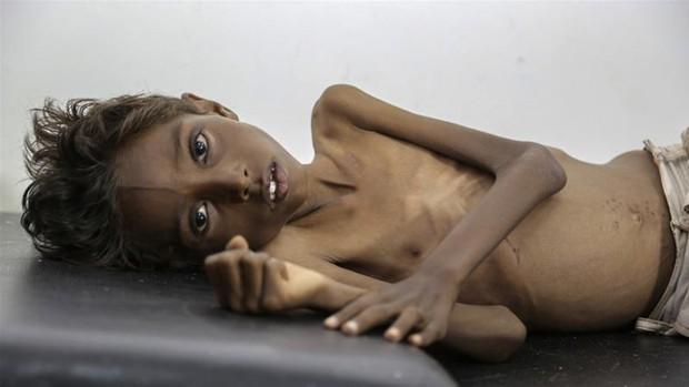 Bức hình bé trai 5 tuổi suy dinh dưỡng đầy ám ảnh về nỗi đau của trẻ em Yemen - Ảnh 1.