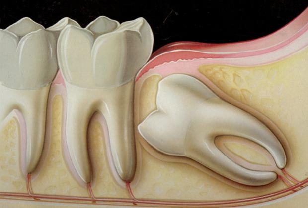 Sở hữu thứ này trong người, bạn sẽ không bao giờ cảm thấy đau phát điên vì mọc răng... ngu - Ảnh 2.