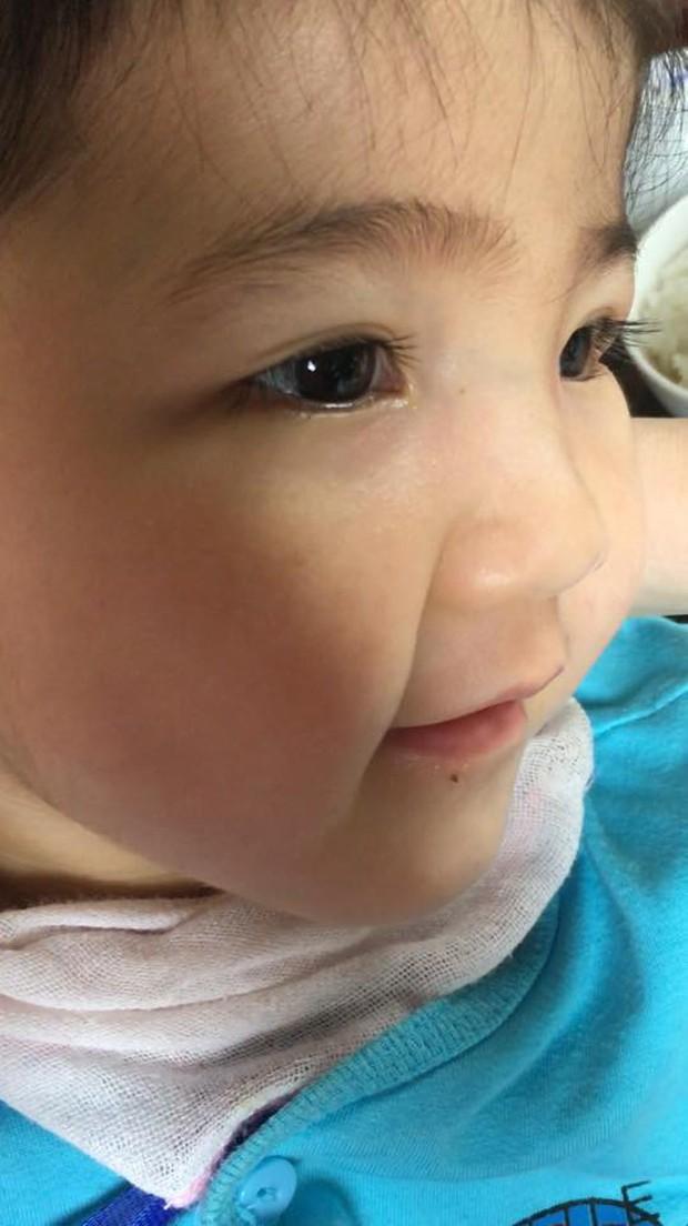 Clip: Sau gần 1 năm, em bé Lào Cai suy dinh dưỡng đã biết cười tươi khi nghe tiếng gọi của mẹ nuôi 9X - Ảnh 5.