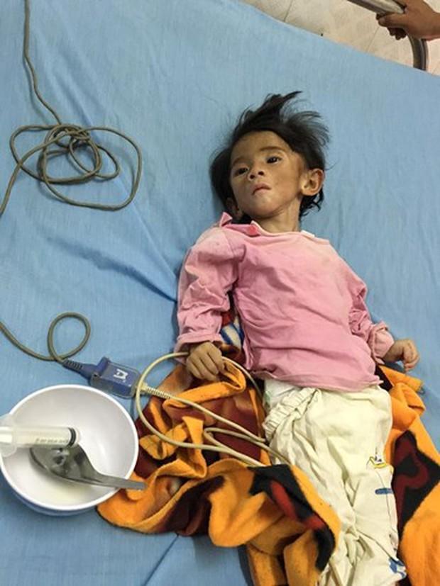 Clip: Sau gần 1 năm, em bé Lào Cai suy dinh dưỡng đã biết cười tươi khi nghe tiếng gọi của mẹ nuôi 9X - Ảnh 1.