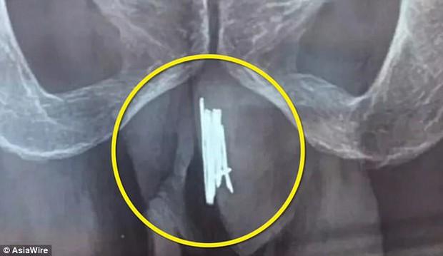 Trung Quốc: Nhét 15 kim khâu vào vùng kín để thỏa mãn, người đàn ông phải nhập viện trong tình trạng nguy kịch - Ảnh 1.