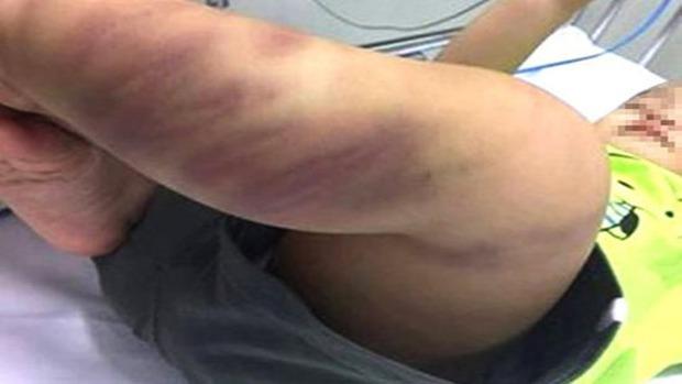 Bé trai 1 tuổi bị bạo hành sức khoẻ chuyển biến xấu - Ảnh 1.