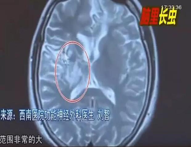 Toàn thân đau ê ẩm, cô gái sốc nặng khi phát hiện có giun sinh sống trong não mình suốt 4 năm trời - Ảnh 1.