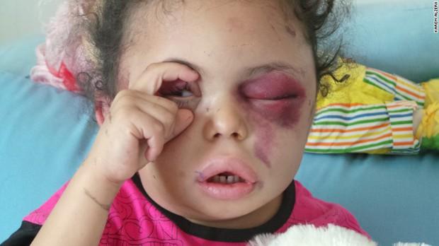 Hình ảnh cô bé 5 tuổi khiến cả thế giới phải sững sờ  trước thảm hoạ nhân đạo tại quê hương Yemen - Ảnh 2.
