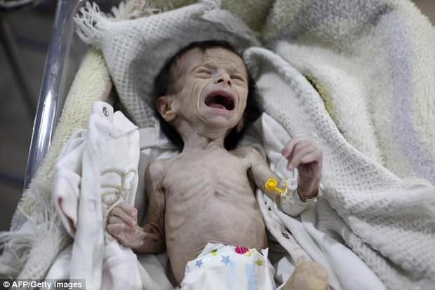 Hình ảnh em bé Syria suy dinh dưỡng, gầy trơ xương khiến cả thế giới rúng động - Ảnh 1.