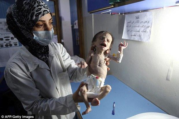 Hình ảnh em bé Syria suy dinh dưỡng, gầy trơ xương khiến cả thế giới rúng động - Ảnh 2.